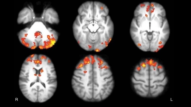 Computer programme beats doctors at spotting brain cancer