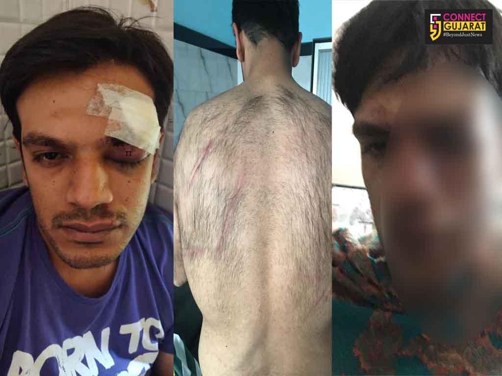 Memon family from Vadodara attacked in Lonavala